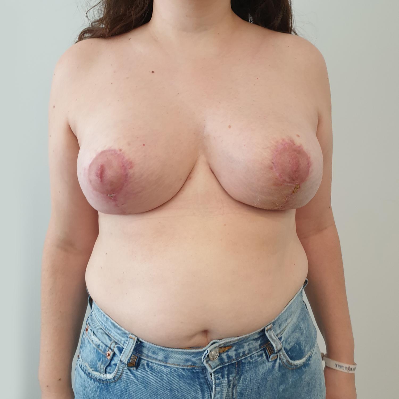 VA-Simetrizacion-y-reduccion-mamaria-Post1