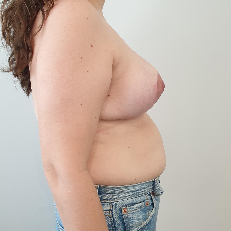 VA-Simetrizacion-y-reduccion-mamaria-Post2