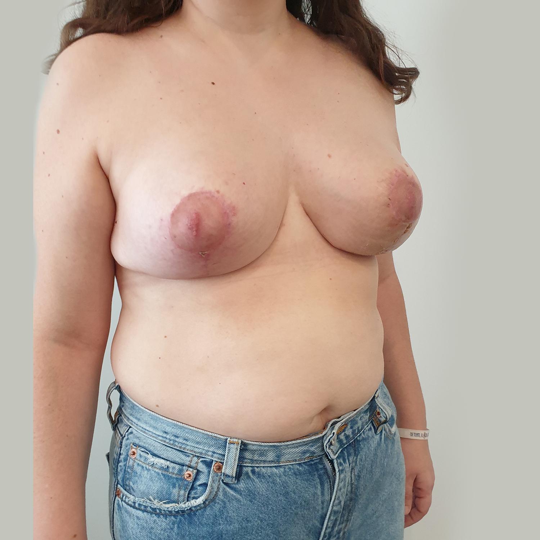 VA-Simetrizacion-y-reduccion-mamaria-Post3