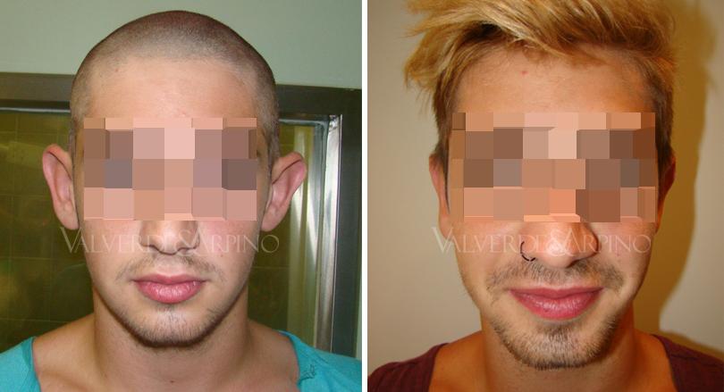 cirugia-de-las-orejas-otoplastia