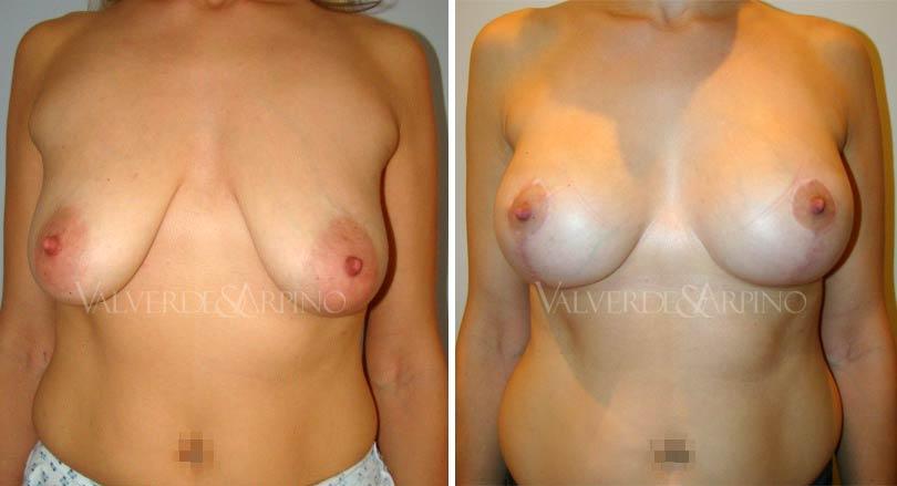 elevacion-con-implantes-caso1-frontal-