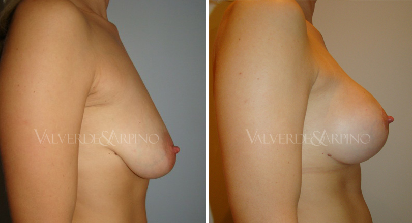 elevacion-con-implantes-caso1-lateral-derecho-