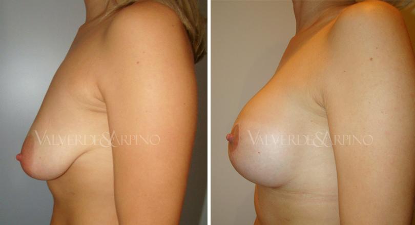 elevacion-con-implantes-caso1-lateral-izquierdo-