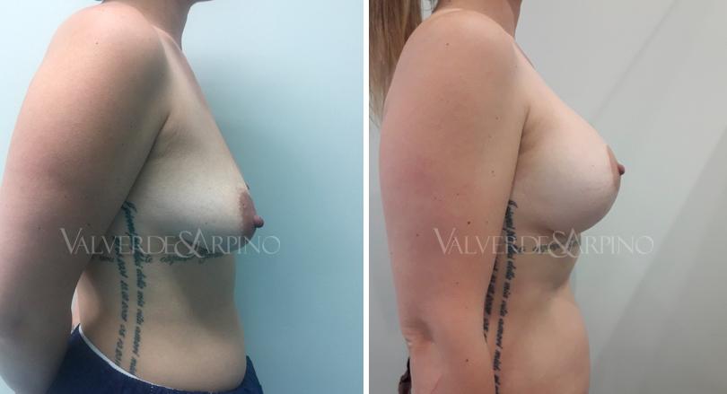 asimetria-mamaria-9-mayo-lateral