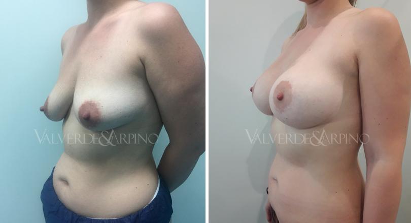 asimetria-mamaria-9-mayo-oblicuo