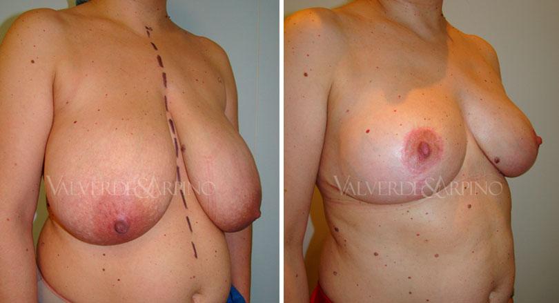 reduccion-mamaria-caso-calidad-de-vida-oblicuo
