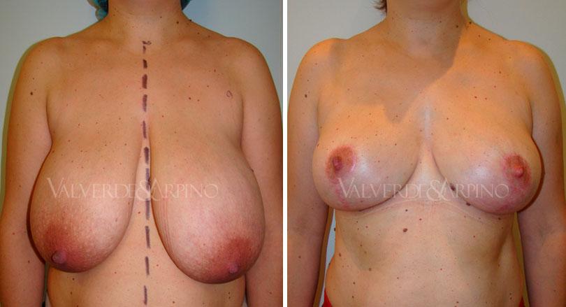 Calidad de vida, deporte y Reducción mamaria