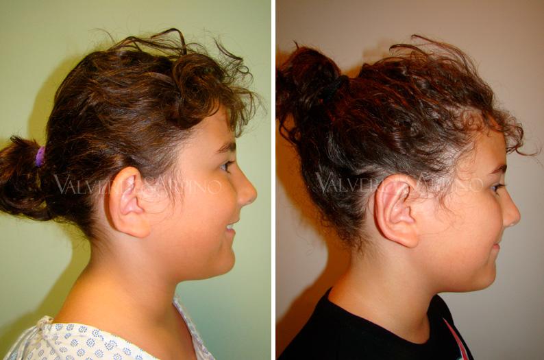 Earfold-niña-lateral