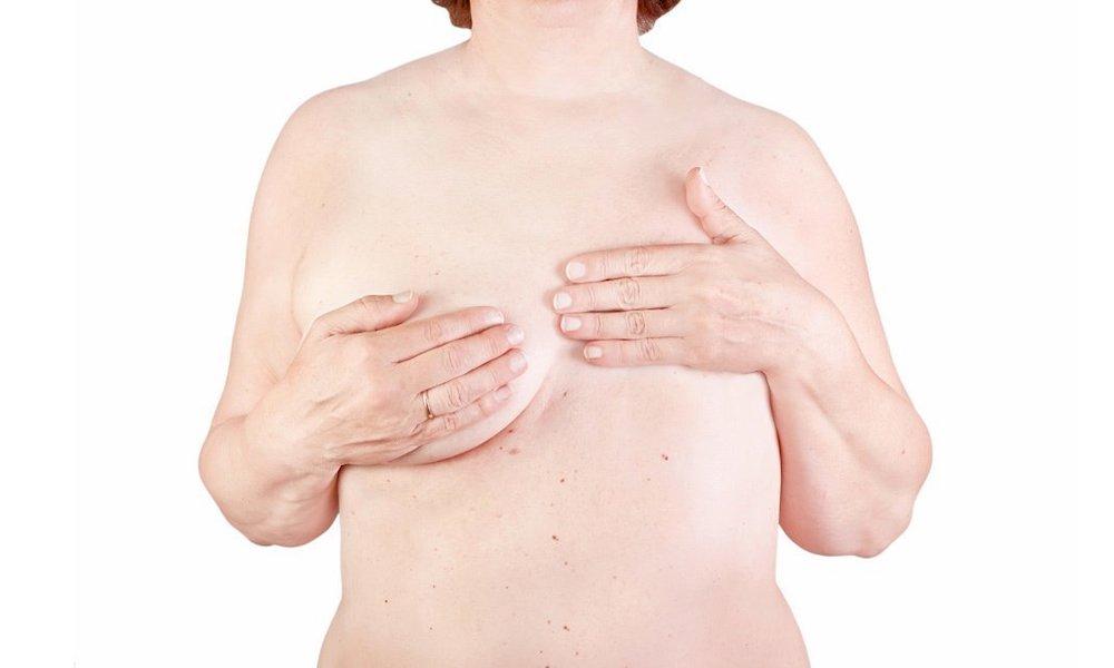 cirugia-reconstructiva-mamaria
