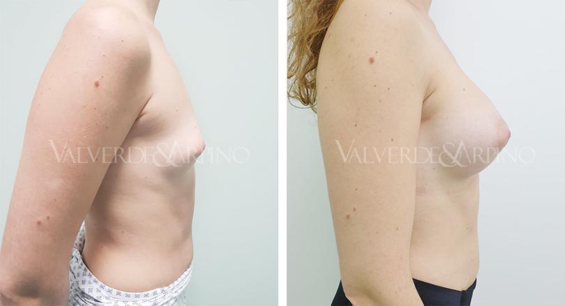 Aumento-Mamario-Anatomicas