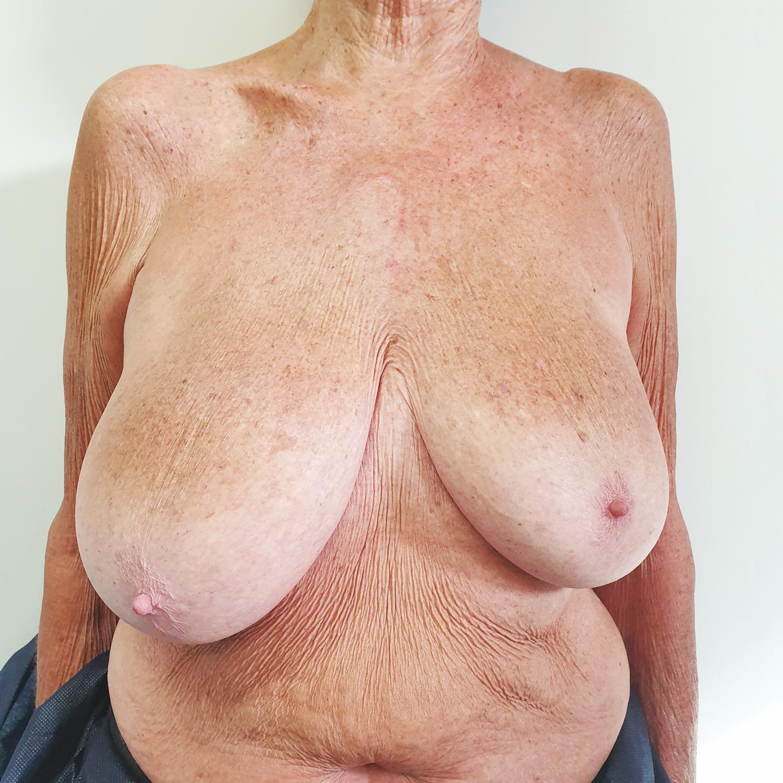 Pacientes senior